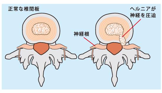 椎間板ヘルニアの原因
